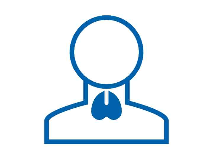 Polyzystisches Ovarsyndrom / Polyzystisches Ovarialsyndrom (PCOS)