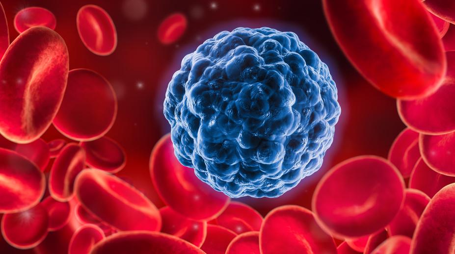 CAR-T-Zelltherapie enttarnt Krebszellen