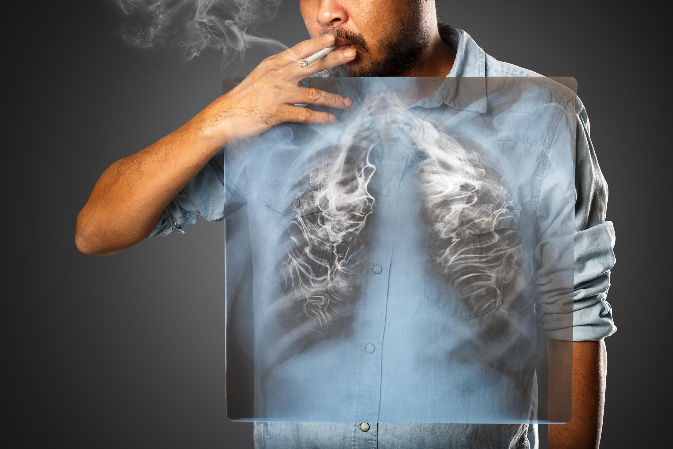 Forschung lungenkrebs promotion code