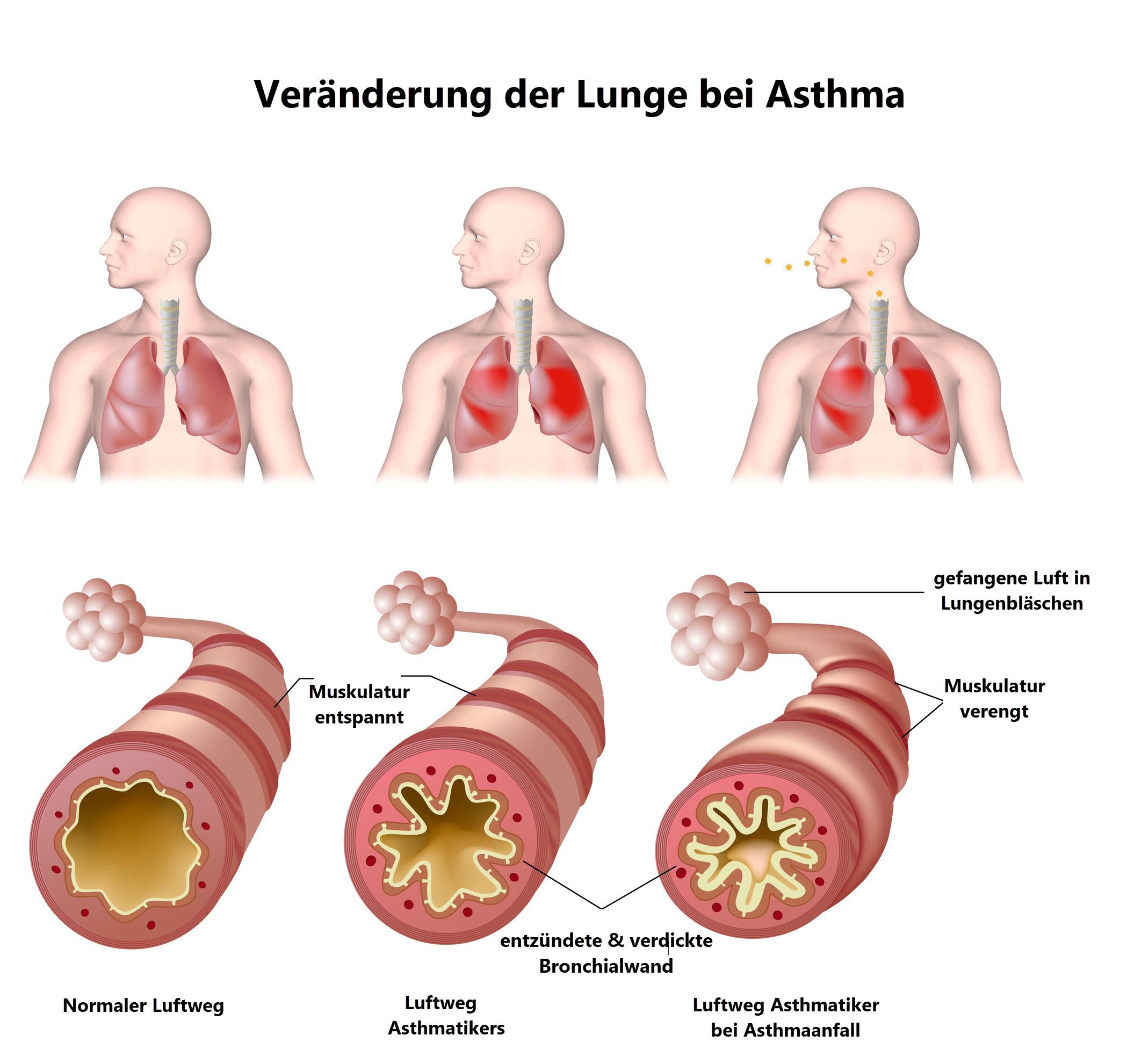 Asthma_Veränderung der Lunge